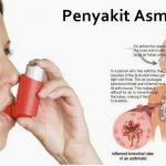 Cara Menyembuhkan Sakit Asma Akut - BIO Spray Nutric