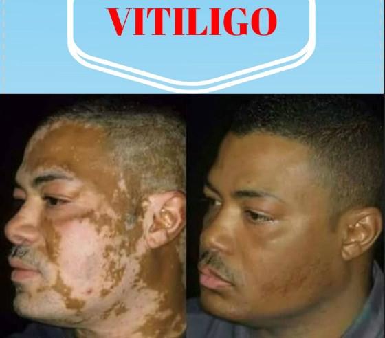 Vitiligo penyakit apa – Gejala, Penyebab dan Cara Mengobati