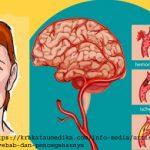 Penyebab Stroke beserta Gejala, Faktor Risiko serta Cara pencegahannya